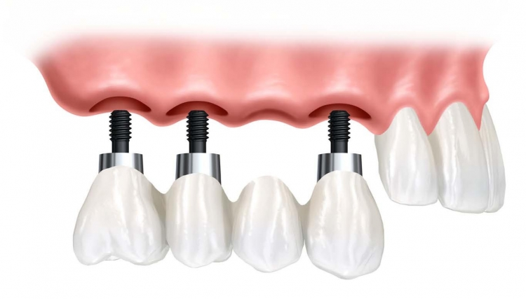 Despre implant dentar si osteointegrare